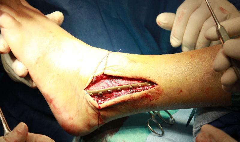 через какое время можно снимать пластинку при переломе ноги