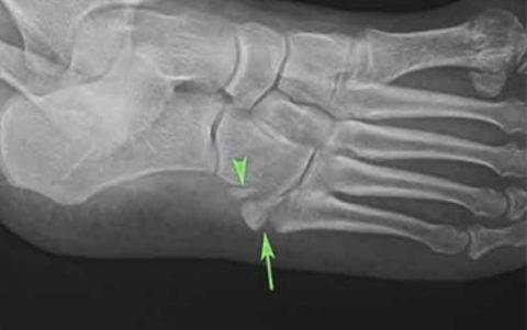 На фото рентгенограмма перелома кубовидной кости
