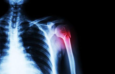 На фото закрытый перелом плечевой шейки.