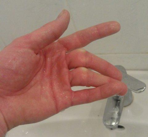 На фото закрытый внутрисуставный перелом среднего пальца и безымянного