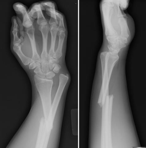 На рентгенограмме хорошо виден перелом со смещением диафиза локтевой кости