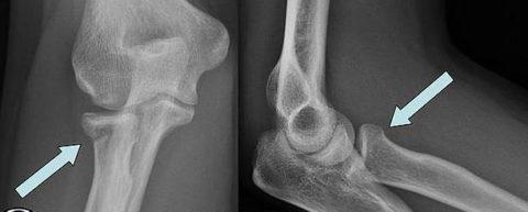 На рентгенограмме перелом головки лучевой кости (слева) и шейки (справа)