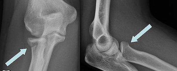 Трещина головки лучевой кости локтевого сустава без смещения артроз плюснефаланговых суставов правой стопы