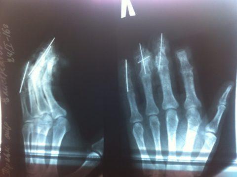 На снимке виден открытый краевой перелом среднего пальца на руке