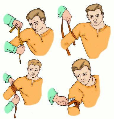 Накладывание жгута на плечо при кровотечении из пальцев рук