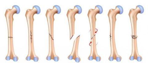 Некоторые из разновидностей диафизарных переломов середины правой плечевой кости