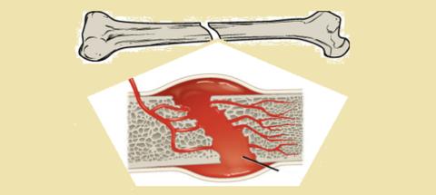 Образование при переломе гематомы запускает процесс регенерации костной ткани