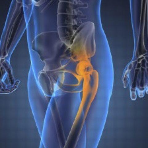 Одной из разновидностей переломов таза является повреждение по Мальгеню
