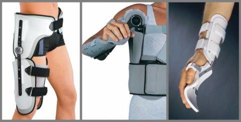 Ортезы: при переломе шейки бедра, лучевой кости, переломах запястья
