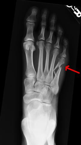 Основной метод диагностики - рентгенологический