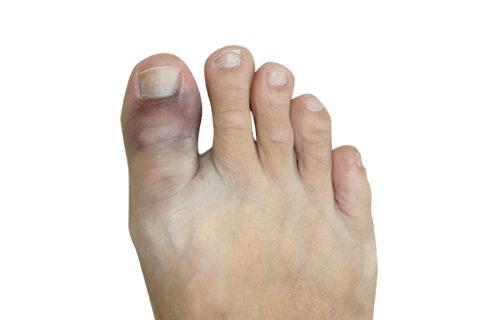 Основные симптомы закрытого перелома пальца – отек и гематома
