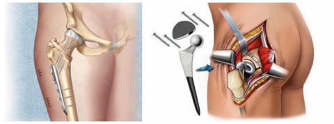 Остеосинтез шейки бедра и эндопротезирование тазобедренного сустава