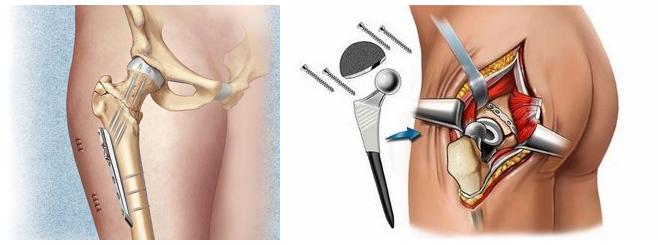 операция по эндопротезированию коленного сустава сколько длится операция