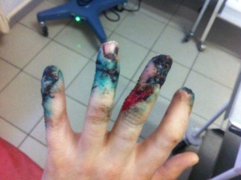 Открытые переломы пальцев руки