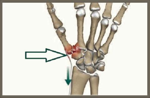 Перелом Беннетта относится к внутрисуставным переломам со смещением