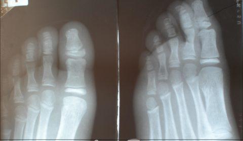 Перелом большого пальца ноги диагностируют с помощью рентгена