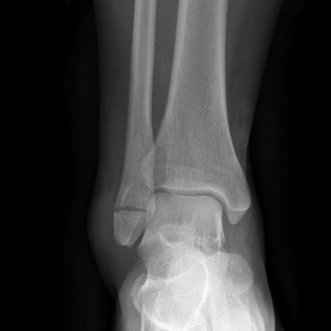 Перелом дистальной части лодыжки.