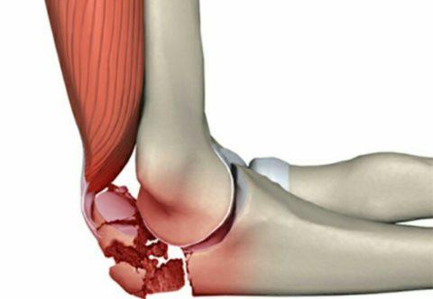Перелом мыщелка локтевого сустава