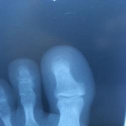 Перелом ногтевой фаланги пальца