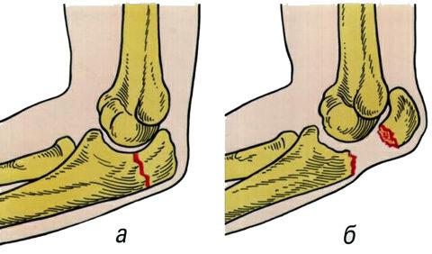 Перелом предплечья у локтевого сустава