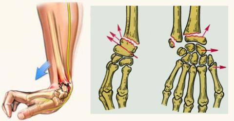 Перелом Путо-Коллеса: механизм получения и виды повреждения костей