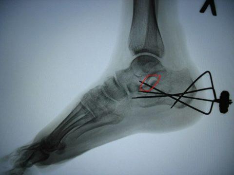 Перелом пятки со смещением на рентгеновском снимке