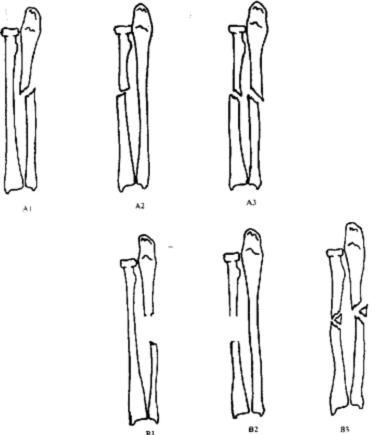 Переломы диафиза предплечья (А-В)