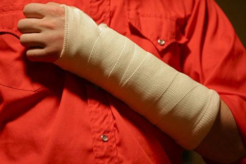 Переломы руки в области головки луча встречаются нечасто