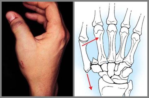 Переломы руки в области кисти составляют 35% от всех переломов скелетных костей
