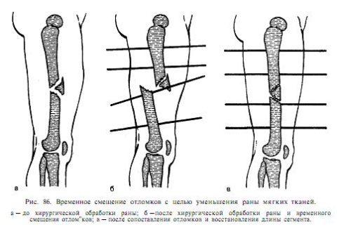 Переломы со смещением часто фиксируют при помощи спиц.