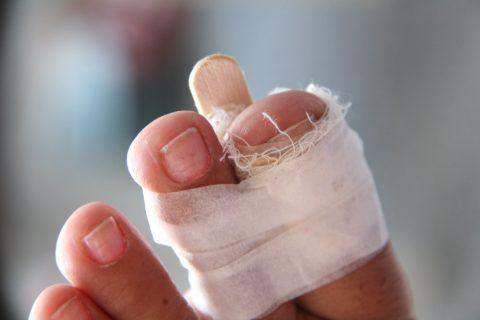 Первичная иммобилизация перелома пальца ноги