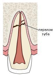 Повреждение коронки при переломе