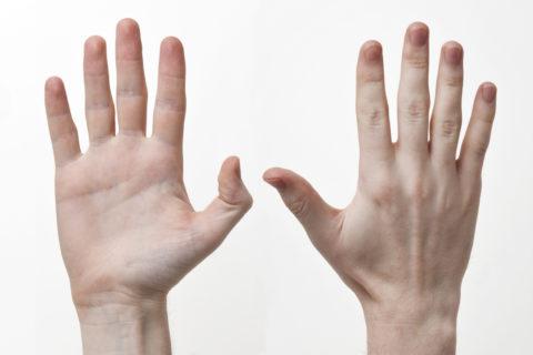При переломе мелких костей запястья внешних изменений нет