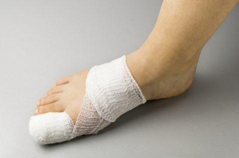 При переломе пальца накладывают гипс