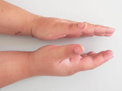 При переломе полулунной кисти образуется отек