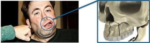 При повреждении верхней челюсти наблюдается асимметрия лица.