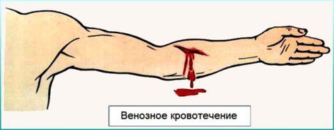 При венозном кровотечении — кровь темного цвета