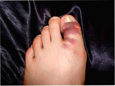 При закрытом переломе кожа не повреждается