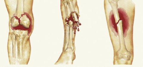 При закрытых переломах (на рисунке – слева и справа) сохраняется целостность кожи
