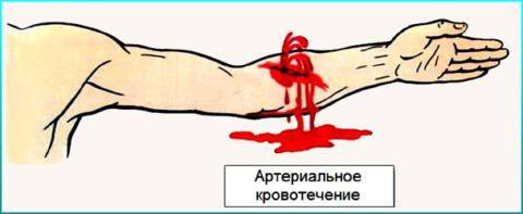 Пульсирующая струя крови при артериальном кровотечении
