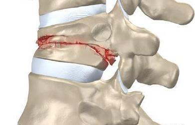 Развивается от трещины к полному перелому позвонка