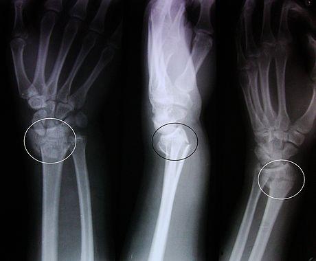 Рентген частичного внутрисуставного излома лучевой косточки