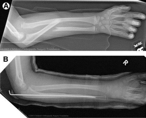 Рентгенограмма переломовывиха Монтеджа
