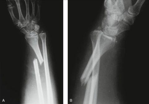 Рентгенограмма повреждения Галеацци