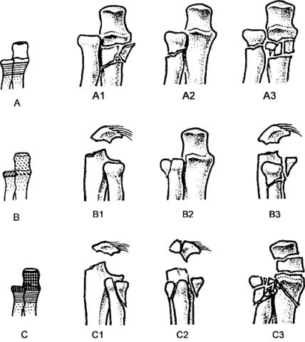Рисунки повреждений проксимальных сегментов косточек предплечья