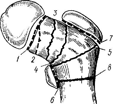 С отрывом малого вертела (№6 на фото)