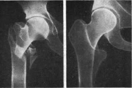 С травмой бедра по приезду в медучреждение сразу назначают рентген.