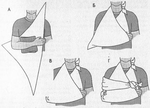 Самый простой вариант повязки