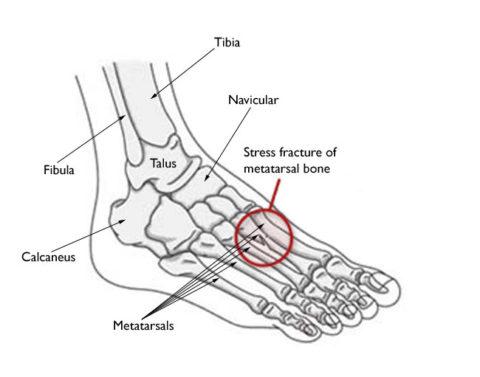 Схематическое изображение с указанием локализации маршевого перелома.