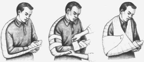 Шина при переломе зафиксирует отломки костей и не позволит им смещаться.
